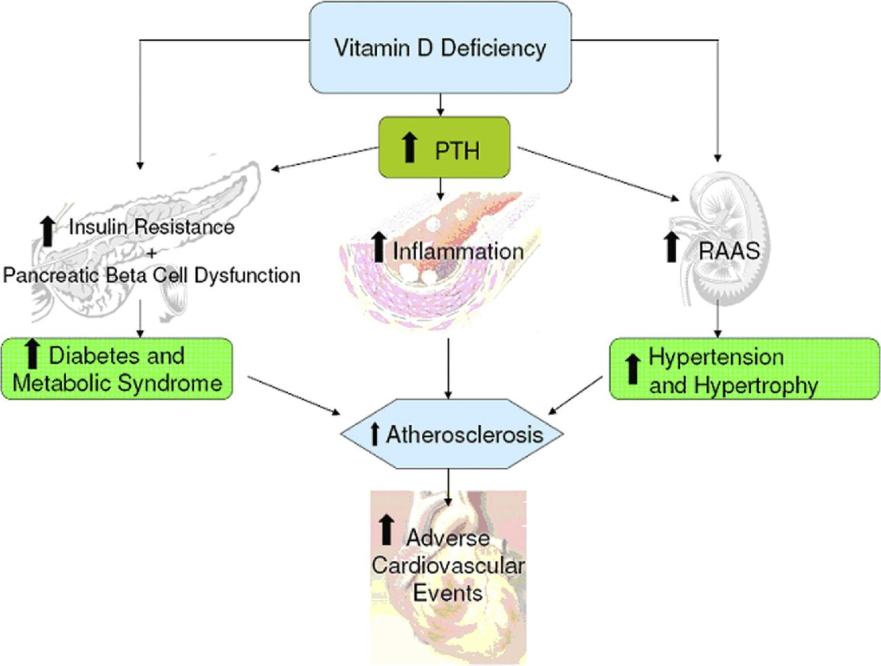Vit D and inflammation.jpg