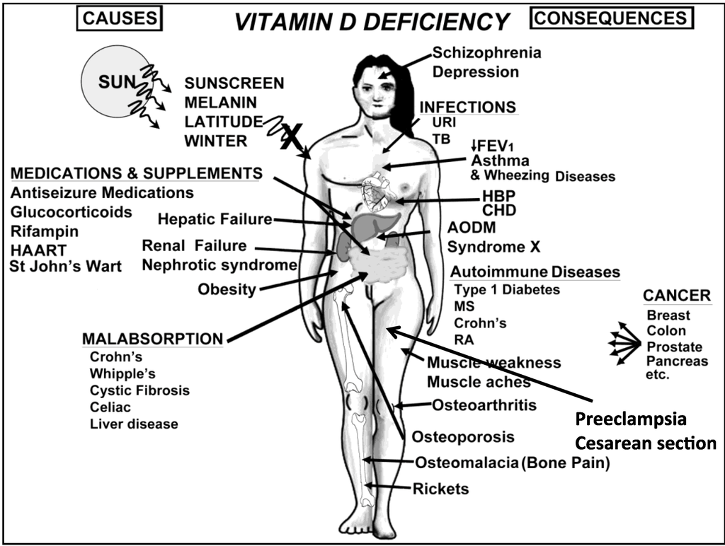 vitamin-d-deficiency-causes and consequences.png